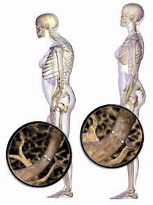 cairnschiropractor-osteoporosis
